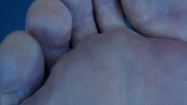 その独特の肌パターンで人間の足の裏 - 人の肌点の映像素材/bロール