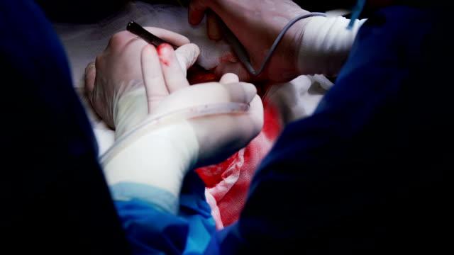 vídeos y material grabado en eventos de stock de el cirujano llevar a cabo la operación de craneotomía - autopsia