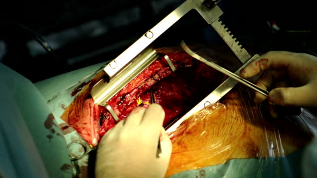 The surgeon makes an operation on the heart Doctor using the tools of conducting an operation on the heart defibrillator stock videos & royalty-free footage