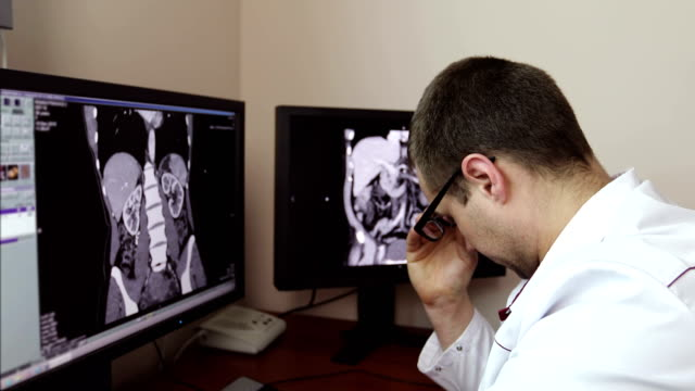 4K The tired doctor took off his glasses while sitting at the monitors with an X-ray examination. video