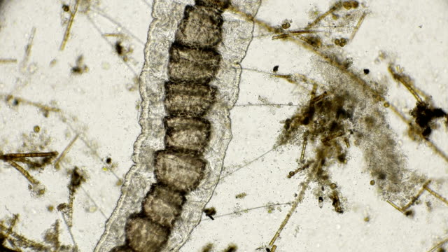the worm of the family Naididae, Pristina longiseta and the reduction of its internal organs under a microscope