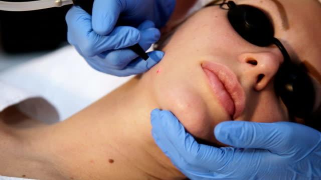 Therapeuten Kosmetikerin machen Sie eine laser-Revitalisierung – Video