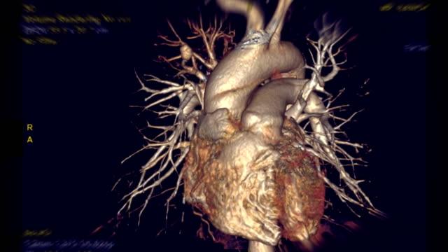 vídeos y material grabado en eventos de stock de la representación de aorta torácica 3d de cta con arteria pulmonar gira en la pantalla. - arteriograma