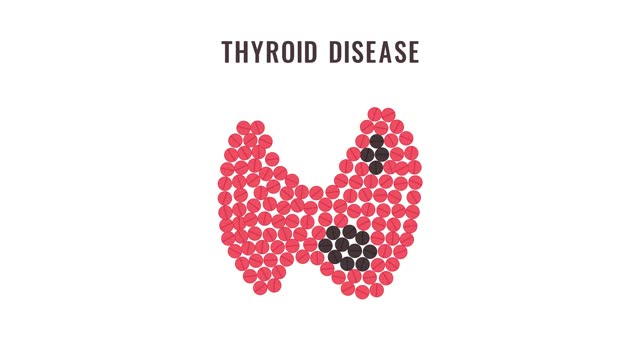 Thyroid gland disease pills animation Thyroid disease cartoon animation of pills forming thyroid gland. Hyperthyroidism goiter motion graphics. Human endocrine system body organ treatment. Medical awareness concept. hypothalamus stock videos & royalty-free footage