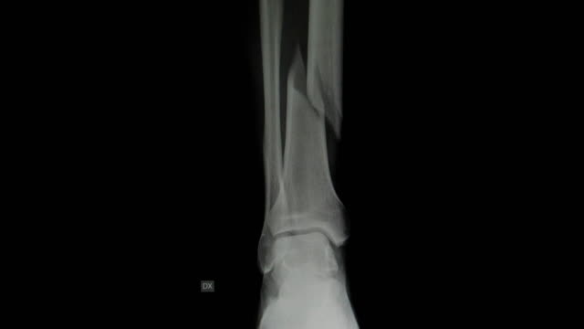 tibia bone leg compound fracture - radiografia video stock e b–roll