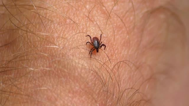 Tick Walking on Human Skin Seeking Place to Feed on Blood