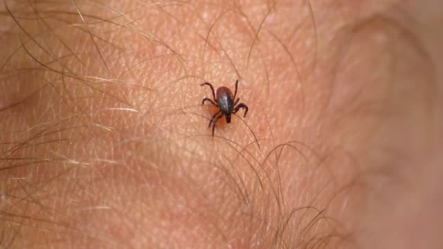 tick walking on human skin seeking place to feed on blood - insetto video stock e b–roll