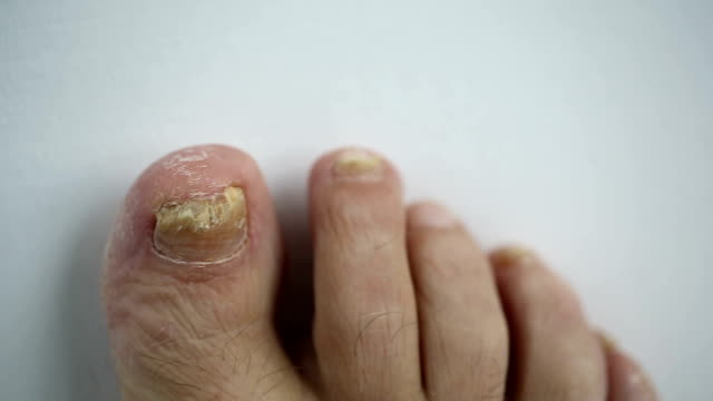 Toenails with fungal infection video