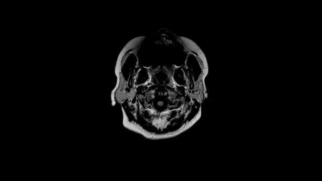tomography of the brain video