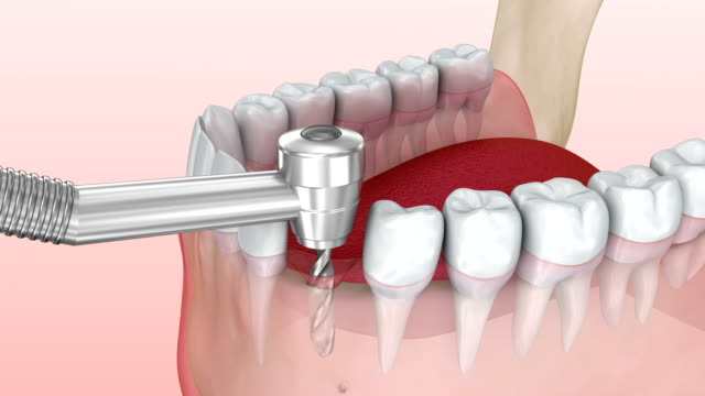 Tooth implant installation process, Medically accurate 3d animation Tooth implant installation process, Medically accurate 3d animation implant stock videos & royalty-free footage
