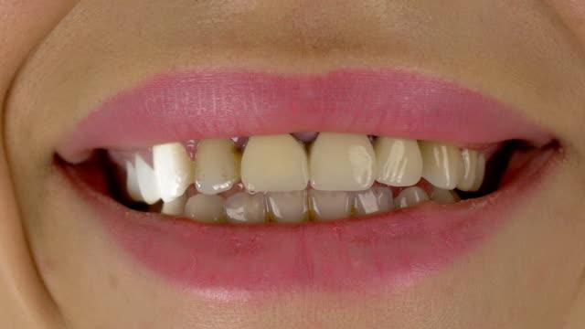 Tooth Whitening - 4K Resolution
