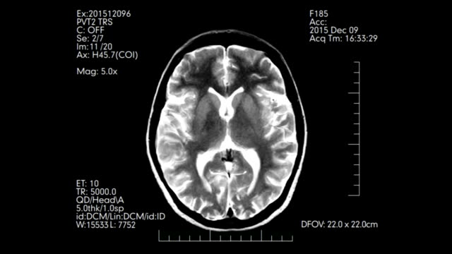 Top view black and white futuristic display animation of MRI brain scan pictures video