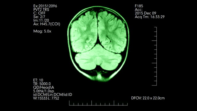 MRI top view green colored brain scan medical display with additional data animation video