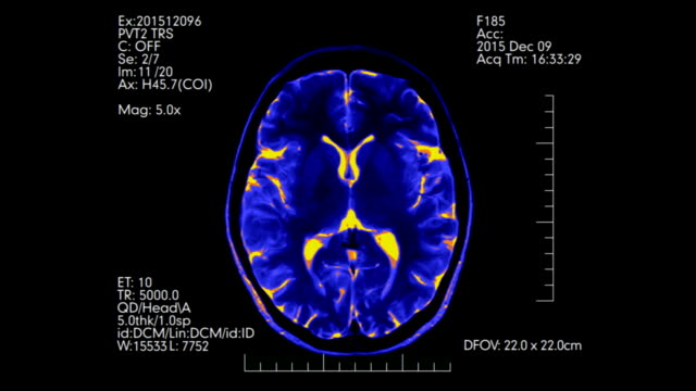 Top view MRI brain scan with data futuristic display animation video