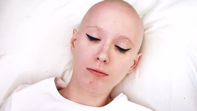 top bir kanser hasta kadın yatağında uyanır yalan görünümünü ve korkmuş ve ilgili - meme hayvan vücudu bölümleri stok videoları ve detay görüntü çekimi