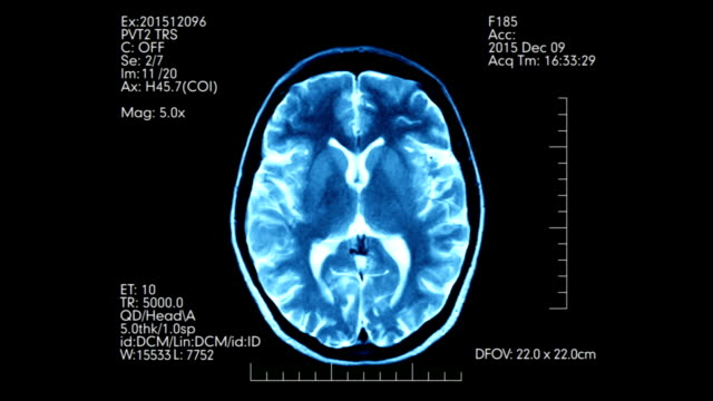 top view teal color mri brain scan display animation with digits and text - radiografia video stock e b–roll