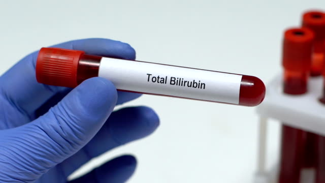 Total Bilirubin, doctor holding blood sample in tube close-up, health check-up