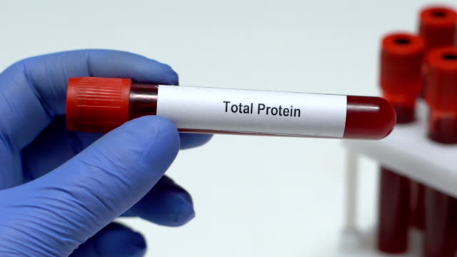 Total Protein, doctor holding blood sample in tube close-up, health check-up