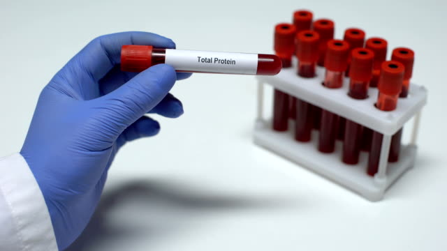 Total protein, doctor showing blood sample in tube, lab research, health checkup