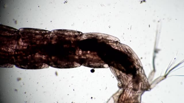 Transparent body with visible organs of the worm in microscope