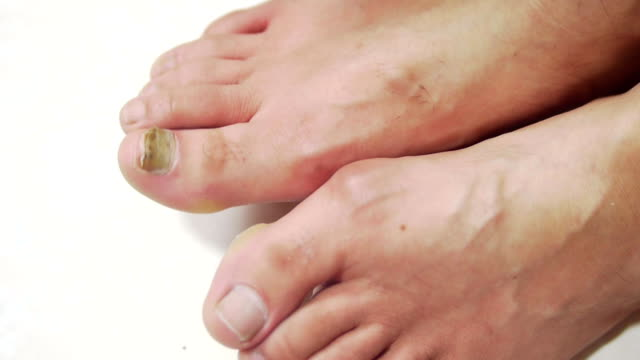 Treatment ringworm of the nails video