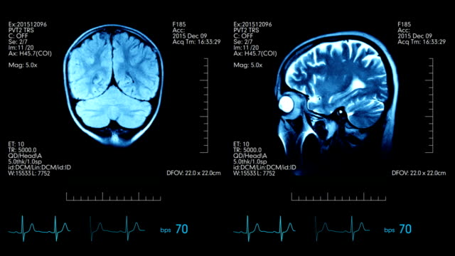 Two animated pictures of mri brain scan on one medical display with heart bps and additional data video