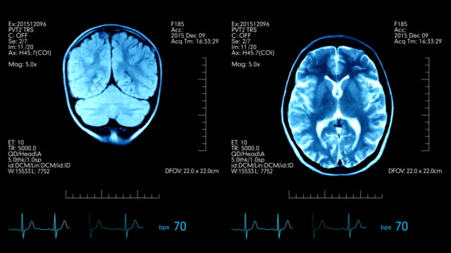 Two top view mri brain scan pictures animated on medical display with heart beat and additional medical data video