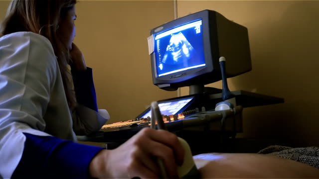 Ultrasonography machine in clinic Colourful image of modern ultrasound monitor. Ultrasonography machine. Woman womb during pregnancy ultrasound stock videos & royalty-free footage