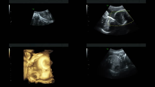 Ultrasound of identical twins hearts beating at 27 weeks video