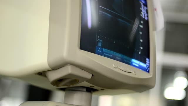 ultraschall-untersuchung - medizinisches untersuchungsgerät stock-videos und b-roll-filmmaterial