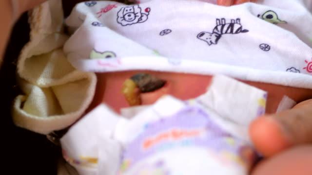 yenidoğan doğumundan sonra göbek kordonu kesilmiş ve klempe - üreme organı stok videoları ve detay görüntü çekimi