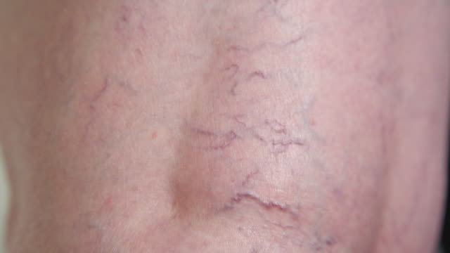 vídeos de stock e filmes b-roll de slow motion close up: unknown lady's curved varicose veins running down her leg. - veia humana
