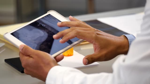 vídeos de stock e filmes b-roll de unrecognizable doctor reviews patient's foot x-ray on digital tablet - feet hand