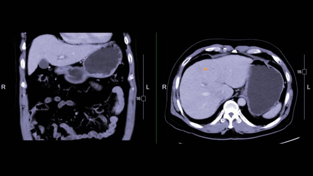 CT Upper Abdomen comparison Coronal and Axial view. CT Upper Abdomen comparison Coronal and Axial view showing small liver mass (Arrow). diagnostic medical tool stock videos & royalty-free footage
