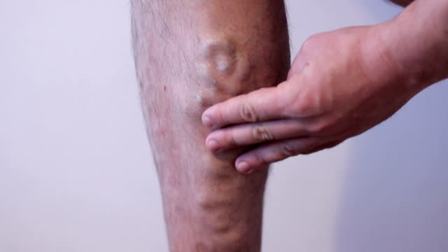 varicose veins varicose veins on man leg blood clot stock videos & royalty-free footage