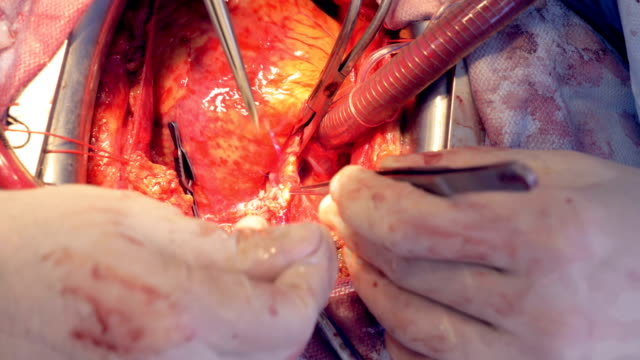 Veins and arteries are being examined during an open heart surgery video
