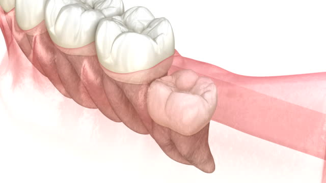 Vertical, Horizontal and Distal impaction of Wisdom tooth. Medically accurate tooth 3D animation Vertical, Horizontal and Distal impaction of Wisdom tooth. Medically accurate tooth 3D animation wisdom stock videos & royalty-free footage