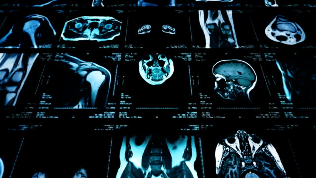 MRI video wall. Black and white. Loopable. Dolly in. 2 videos in 1 file. Multiple MRI videos. Dolly in. Loopable. Full HD. Animation created exclusively for iStockphoto. diagnostic medical tool stock videos & royalty-free footage