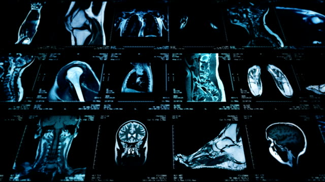 MRI video wall. Black and white. Loopable. Lateral dolly. 2 videos in 1 file. Multiple MRI videos. Lateral dolly. Loopable. Full HD. Animation created exclusively for iStockphoto.  diagnostic medical tool stock videos & royalty-free footage