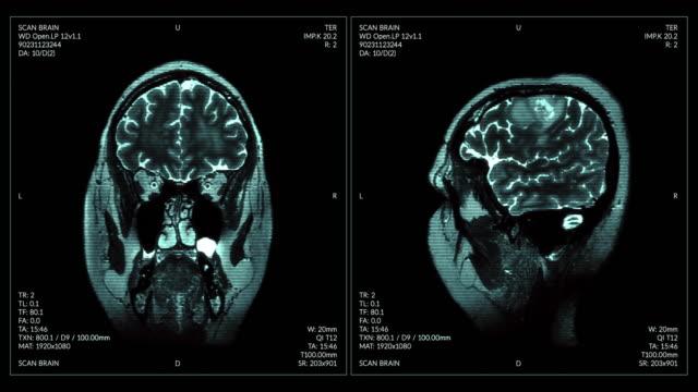 MRI video wall. Black and white.