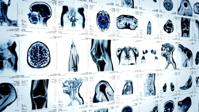 MRI video wall. White and Black. Loopable. Lateral view. 2 videos in 1 file. Multiple MRI videos. Lateral view. Loopable. Full HD. Animation created exclusively for iStockphoto. Loop1bblancneg diagnostic medical tool stock videos & royalty-free footage