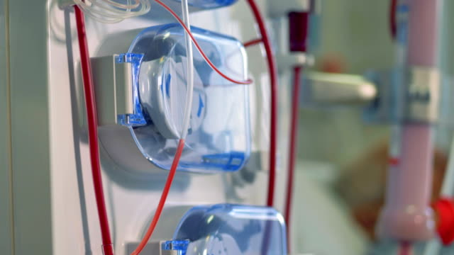 vídeos de stock, filmes e b-roll de uma visão sobre uma máquina de diálise de baixo para cima. - rim órgão interno