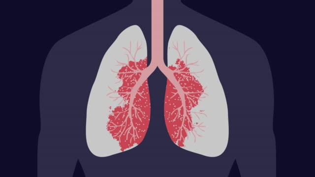 Virus or cancer attack in a lung 4k Computer graphic showing of virus or cancer attack in a lung emphysema stock videos & royalty-free footage