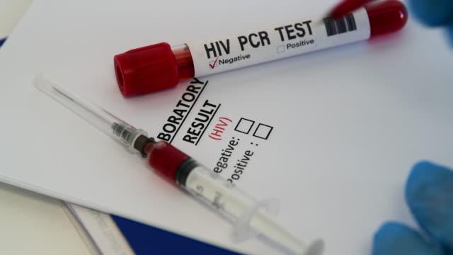 hiv 바이러스 검사. 에이즈 혈액 검사 - aids 스톡 비디오 및 b-롤 화면