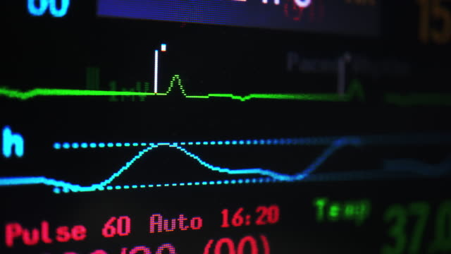 Vital signs monitor Inspect Vital signs monitor screen . cardiologist stock videos & royalty-free footage
