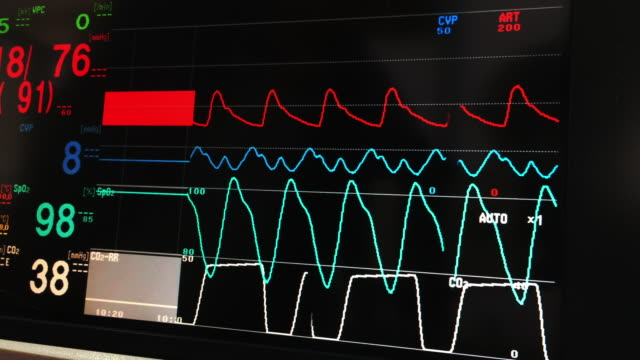 Vital signs monitor Inspect vital signs data screen . blood pressure gauge stock videos & royalty-free footage