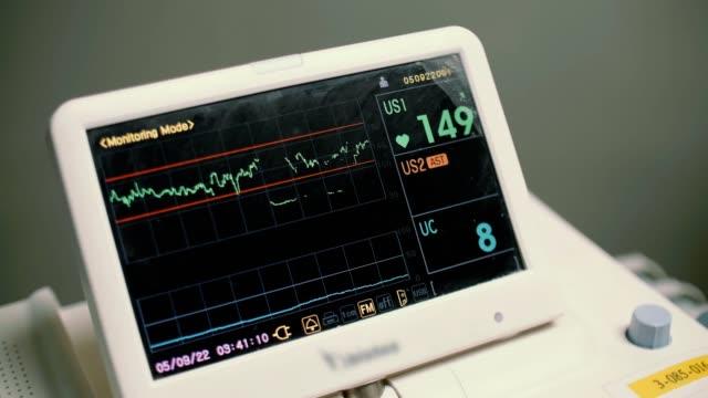 vitalzeichen überwachen - medizinisches untersuchungsgerät stock-videos und b-roll-filmmaterial