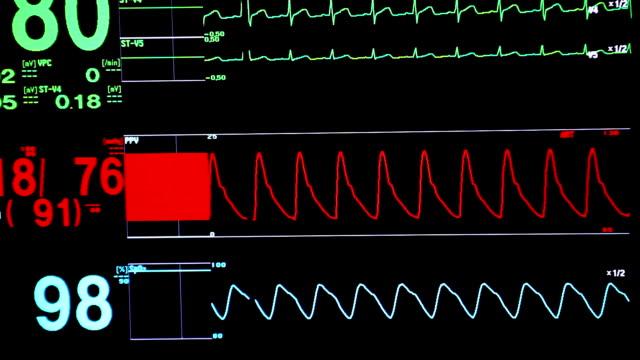 Vital signs monitor (HD) video