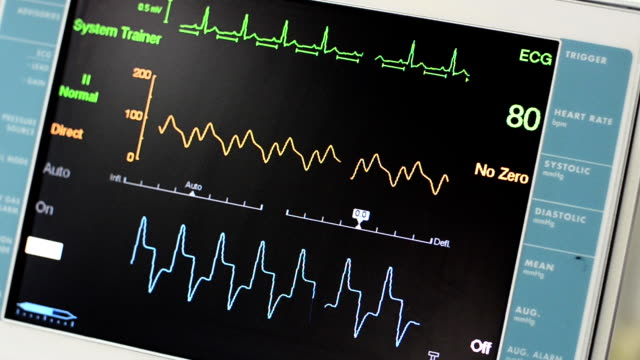 Vital Signs Monitor Intra-aortic balloon pump running. pulse trace stock videos & royalty-free footage