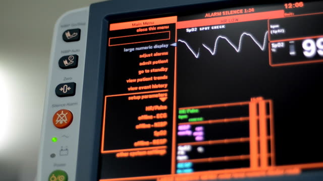 vital signs monitor - medical equipment stock videos and b-roll footage